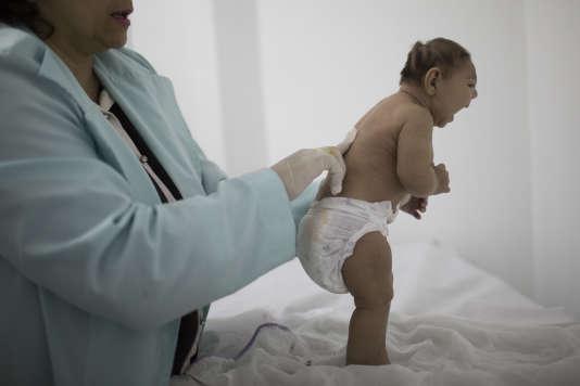 Un enfant âgé de trois mois et atteint de microcéphalie, au Brésil.