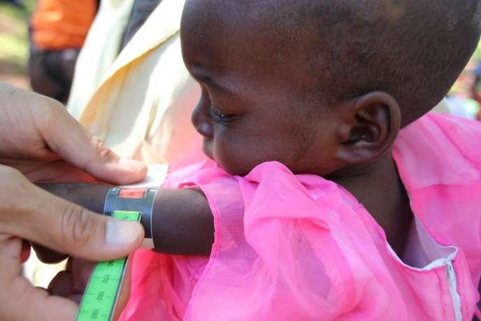 Un médecin surveille la croissance d'une jeune Malawite sous-alimentée.