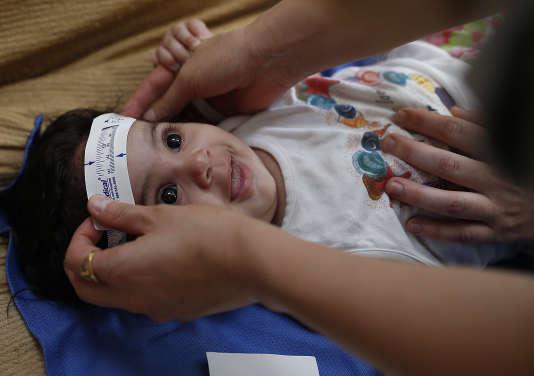 Mesure de la circonférence de la tête d'un bébé afin de déterminer l'influence du virus Zika à Joao Pessoa au Brésil le 24 février 2016.