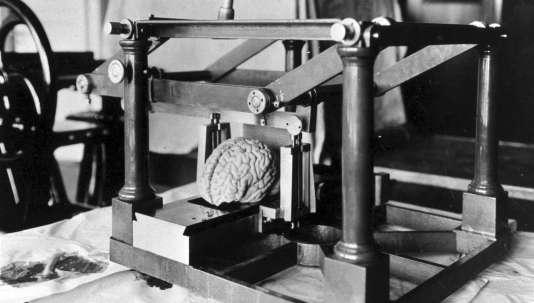 L'un parmi tant d'autres des cerveaux de l'invraisemblable collection sur laquelle s'est fondée une partie de la réputation de Julius Hallervorden, neurologue allemand.