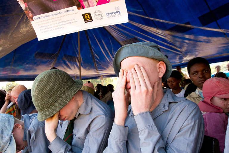 Le Malawi connaît une recrudescence d'assassinats et d'enlèvements d'albinos.