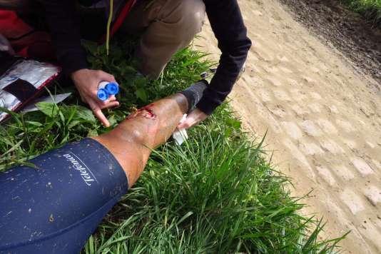 La jambe de Francisco Ventoso après sa blessure sur Paris-Roubaix.