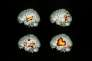 Brain activity when speaking/listening. Coloured positron emission tomography (PET) scans of human brain areas active while speaking and listening. Activity is red/orange. At top left, monitoring imagined speech lights up the auditory cortex. At top right, working out the meaning of heard words activates other areas of the temporal lobe. At lower left, repeating words activates Wernicke's area for language comprehension (right), Broca's area for speech generation (left) and a motor region producing speech. At lower right, monitor- ing speech activates the auditory cortex. Brain activity was detected using radioactive oxygen-15.