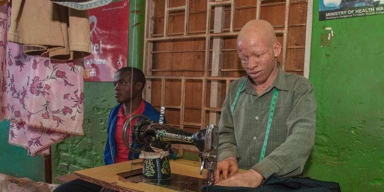 Un tailleur atteint d'albinisme travaille à sa machine à coudre pour un client, dans la banlieue de Lilongwe, la capitale du Malawi, le 21 mars 2015.