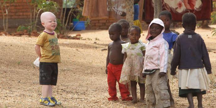 Cassim Jaffalie, 3 ans, un enfant albinos du Malawi, devant sa maison à Machinga.