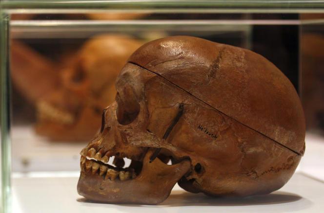 Während einer Zeremonie am 30. September 2011 im Charidae-Krankenhaus in Berlin wurde ein menschlicher Schädel des Herero- oder Nama-Volkes ausgestellt.