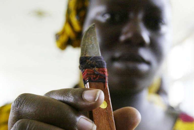Une femme qui pratique les excisions en Côte d'Ivoire montre son «outil de travail».