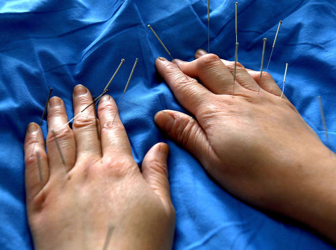 Traitementd'acupuncture dans un hôpital de médecine traditionnelle chinoise, à Hefei, en Chine.