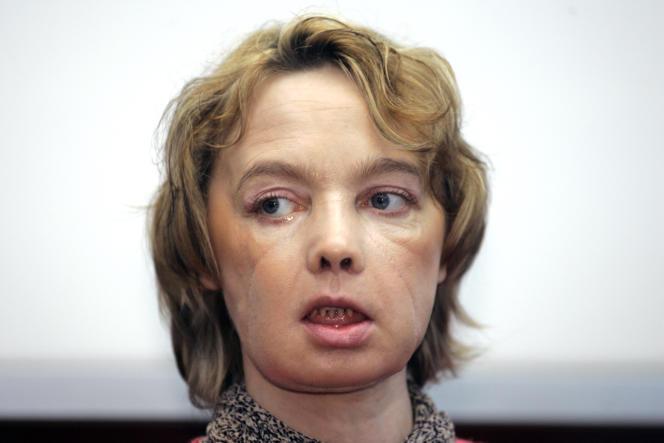 Isabelle Dinoire, première femme à avoir reçu une greffe du visage, en 2006.