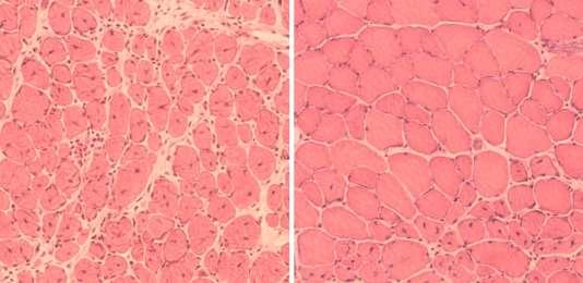 Coupes microscopiques de muscles chez des souris âgées: à gauche, aspect de tissus lésés qui se sont réparés naturellement, à droite, récupération plus complète chez des souris transgéniques soumises à une reprogrammation.