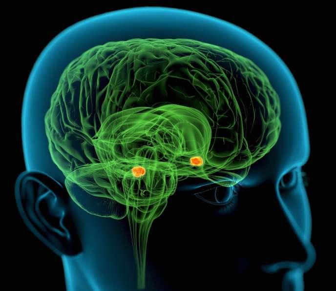 Le stress active l'amygdale, une structure double du cerveau impliquée dans la peur (en jaune/orange sur l'image), puis déclenche une réaction inflammatoire qui dégénère en un dépôt de plaques de graisse sur la paroi de nos vaisseaux.