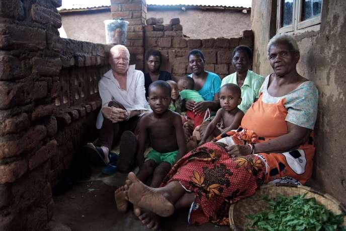 Patrick, 18 ans, albinos, et sa famille à Phalombe, dans l'est du Malawi. Au chômage, Patrick vit avec sa femme, ses deux enfants, au domicile de sa mère et de ses sœurs.