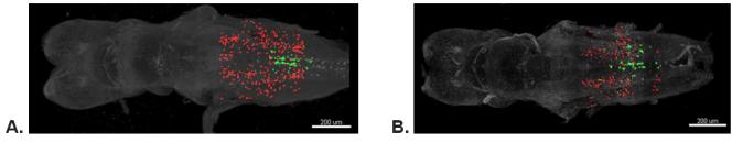 Cerveaux d'embryons de xénope (1 semaine post fécondation), traités (B) ou non (A) avec le mélange de 15 produits chimiques à des concentrations trouvées dans le liquide amniotique humain. Résultat : le traitement a provoqué une diminution du volume des neurones (marqués en rouge)