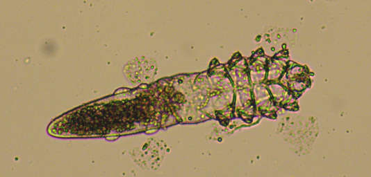 Le Demodex.