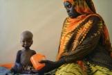 Un enfant malnutri accueilli dans un centre de l'Unicef, dans le sud-ouest de la Somalie, en mars 2017.