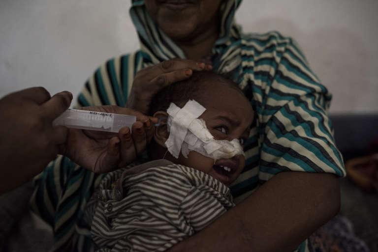 Un enfant de 11 mois reçoit un traitement contre la malnutrition à Borama, au Somaliland.