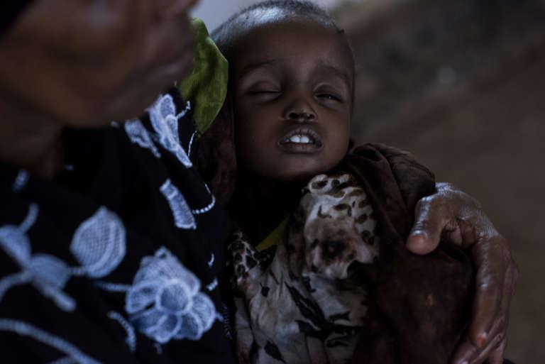 Venue d'Ethiopie, Basra Abdi Maaxh tient son petit-fils Marwo Farxan, un an, qui souffre de malnutrition sévère et de diarrhée, à Burao au Somaliland, le 23 mars.