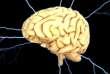 Des phénomènes anormaux dans le cerveau peuvent interrompre la respiration sans que les individus concernés s'en rendent compte.