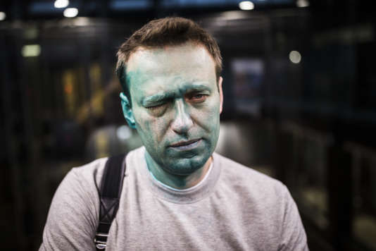 L'opposant russe Alexeï Navalny, après son agression, le 27 avril.