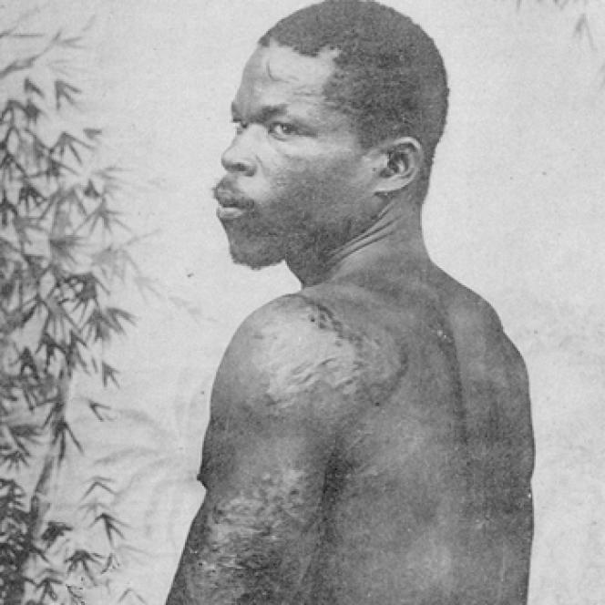 Louis-Auguste Cyparis, rescapé de l'éruption de la montagne Pelée, en 1902.
