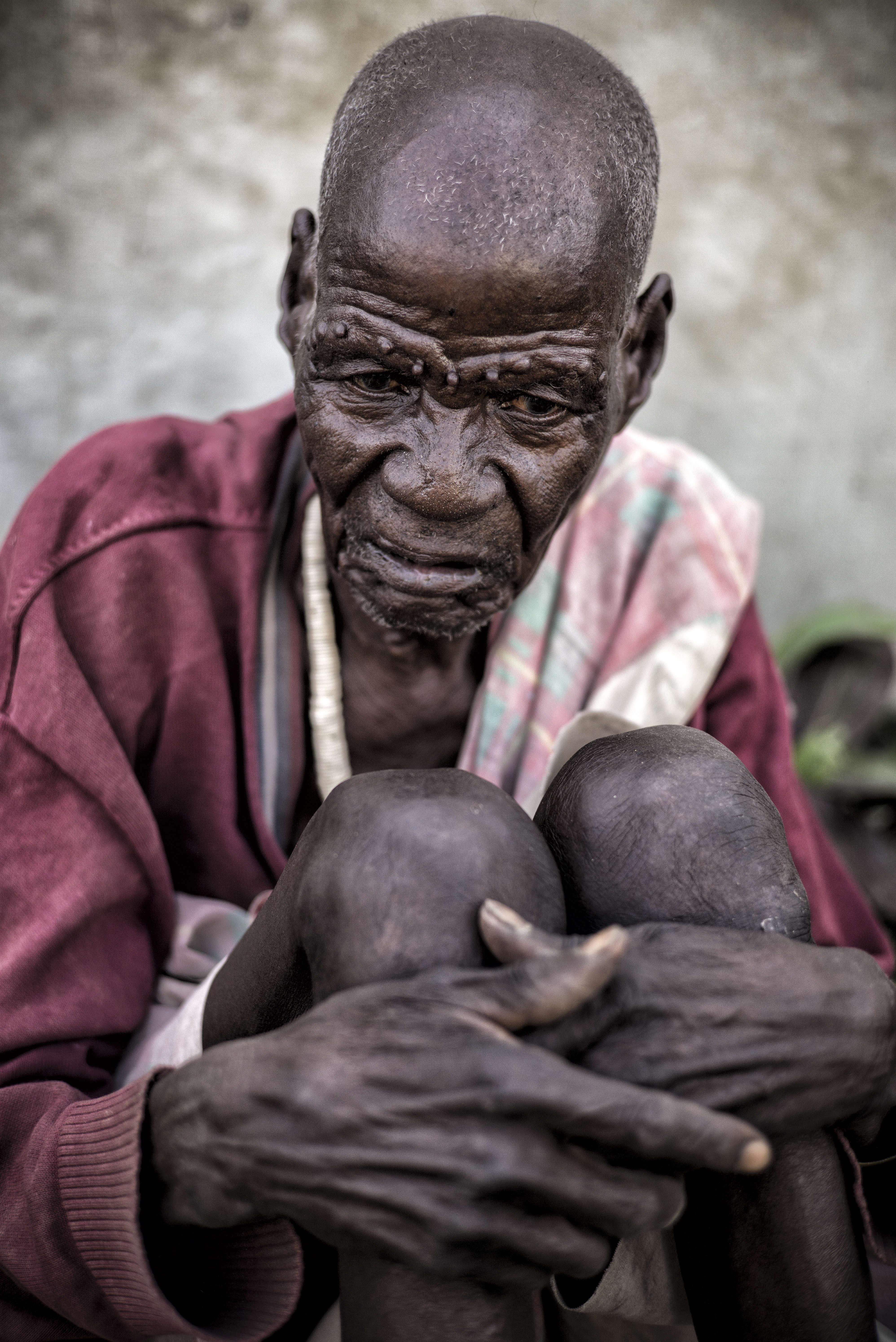 Un survivant d'Ogod, un village du nord du pays, près de Wau Shilluk, la capitale du royaume shilluk attaquée par les forces gouvernementales en février .Il a été évacué par Médecins sans frontières ( MSF) dans le camp de protection des civils de la Minuss, près de Malakal. Avant d'être pris en charge par l'organisation non gouvernementale, il a vécu durant une semaine l'occupation de son village natal, durant laquelle quatre vieillards sont morts de faim autour de lui.