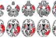 En rouge, l'ensemble des zones lésées dans les deux hémisphères cérébraux par deux AVC. L'hémisphère droit est plus touché que l'hémisphère gauche (dominant) chez cette patiente droitière.