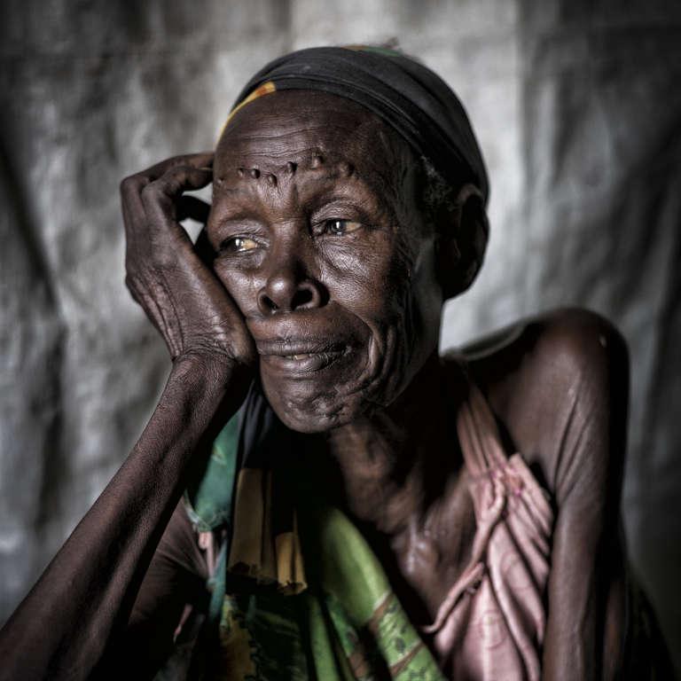 """Survivante de l'attaque de Wau Shilluk - la capitale du royaume shilluk attaquée et détruite par les soldats loyalistes en février 2017 - rapatriée par l'ONG MSF au camp de protection des civils de la Minuss de Malakal. Elle dit avoir 80 ans et assisté à de nombreuses batailles, mais """"pas à une guerre d'une telle intensité. Jamais""""."""