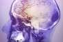 Angiogramme du cerveau d'une patiente de 48 ans après un AVC.