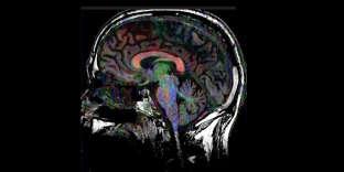 IRM du cerveau quand il écoute de la musique