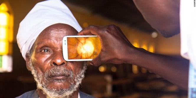 L'application PeekVision, au Botswana, permet un accès aux soins ophtalmiques pour tous.