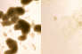 Culture de cellules souches cérébrales cancéreuses, avant (à gauche) et après (à droite) traitement par le virus Zika.
