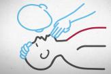 Premiers secours: voici les gestes qui peuvent sauver des vies