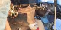 Un patient a joué du saxophone pendant l'ablation d'une tumeur au cerveau, pour vérifier qu'aucune lésion n'était apportée à la zone impliquée dans la musique.