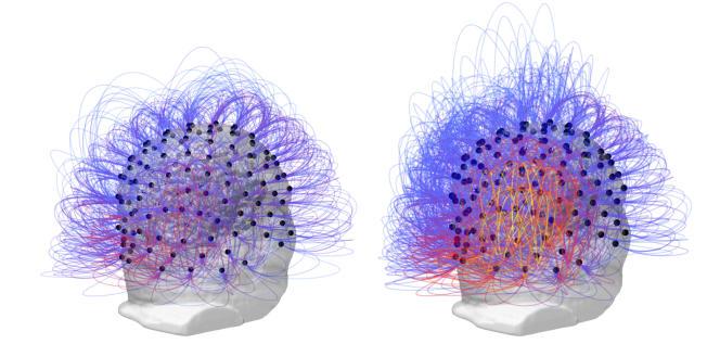 Avant et après la stimulation du nerf vague. A droite, en jaune orangé, l'augmentation de l'activité cérébrale dans la région pariétale.
