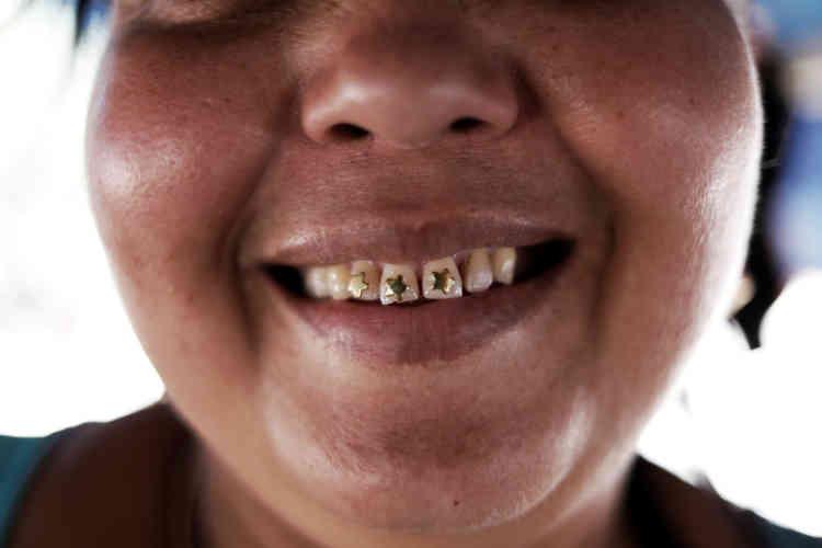 La femme d'un mineur montre ses dents serties d'étoiles en or,près de Crepurizao dans l'Etat de Para au Brésil, le 3 août 2017.