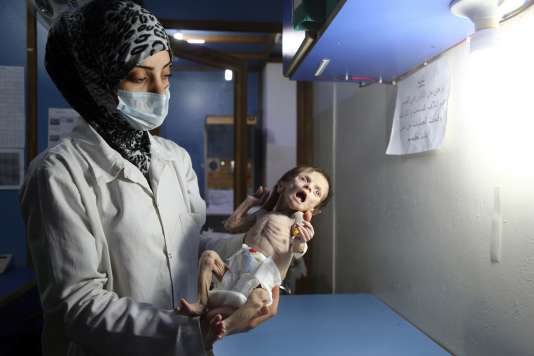 Un enfant syrien souffrant de malnutrition aiguë sévère, porté par une infirmière dans une clinique de la ville de Hamouria (Ghouta orientale), contrôlée par les rebelles, le 21 octobre 2017.