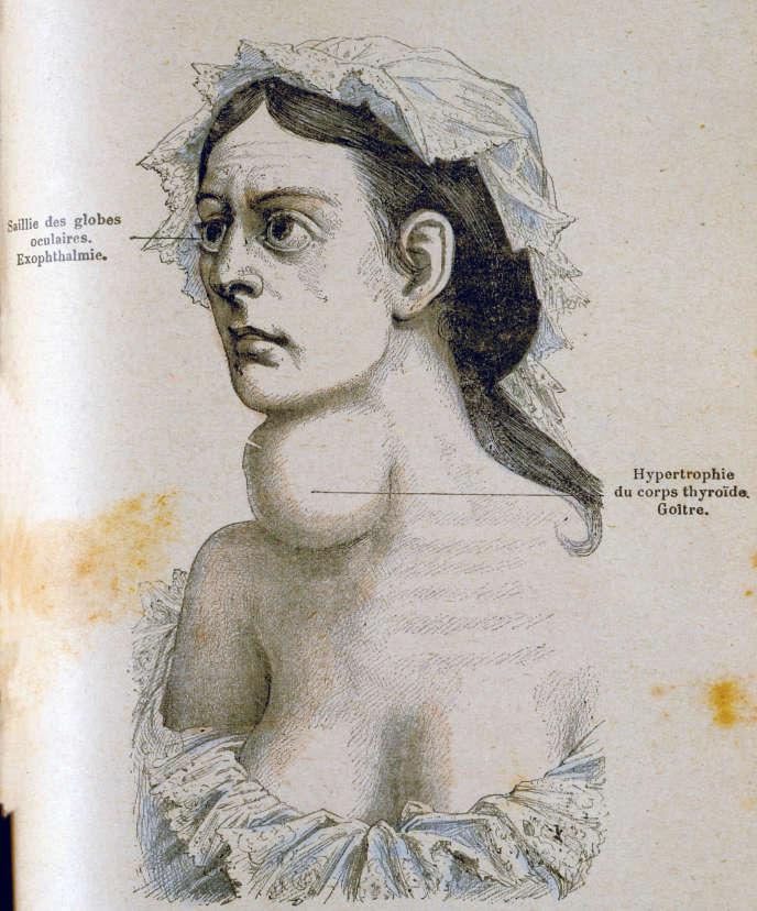 Femme atteinte d'un goitre, gravure extraite de «Les Grands Maux et les Grands Remèdes» (1885), de Jules Rengade.