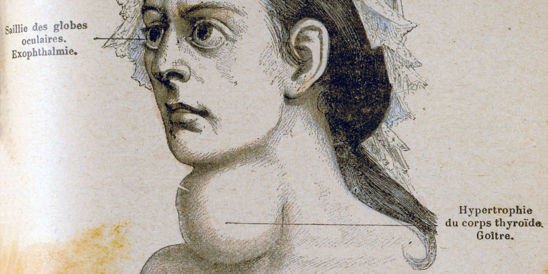 Histoire d'une glande : la thyroïde sous toutes les coutures