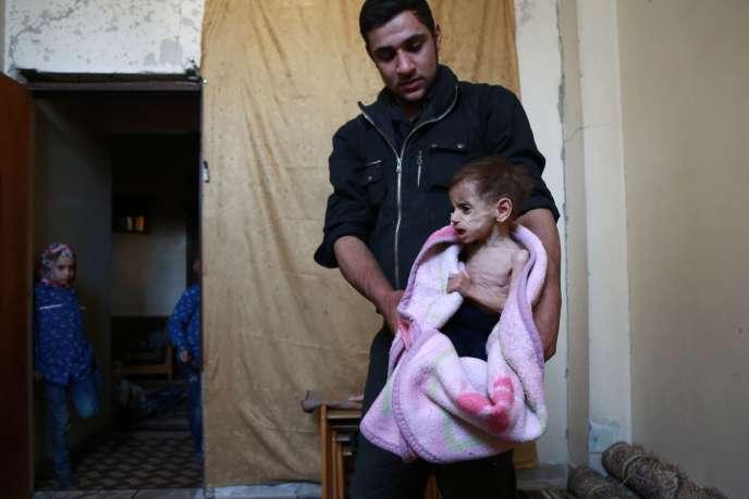 Hala, 2 ans, souffre de malnutrition, à la Ghouta, le 25 octobre.