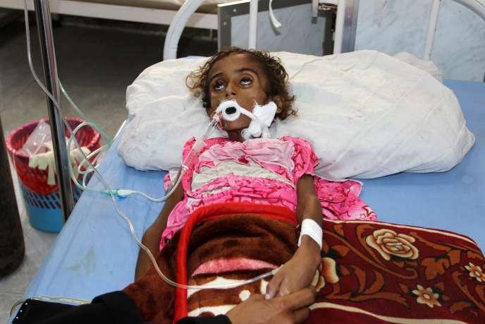 Un enfant souffrant de malnutrition, hospitalisé à Hodeïda, en mai.