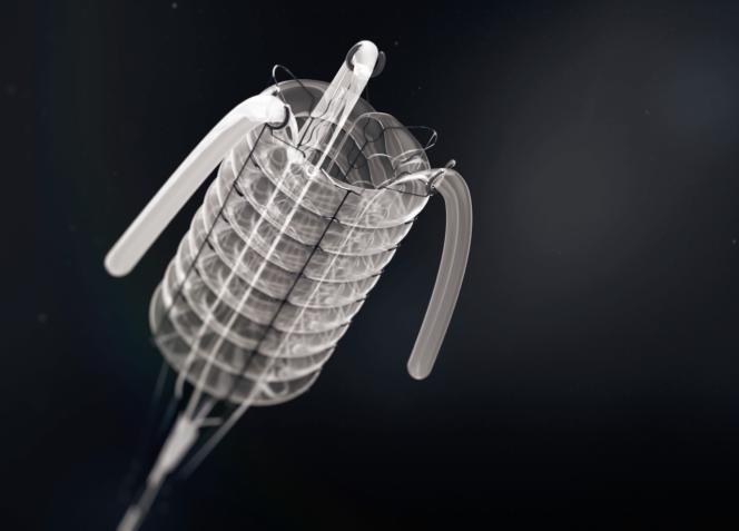 Une représentation en trois dimensions de la valve cardiaque artificielle développée par l'équipe de Peter Zilla auCap, en Afrique du Sud, pour sauver les patients atteints de valvulopathie.