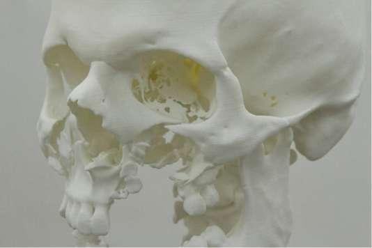 Le chirurgien Roman Hossein Khonsari etl'artiste Donatien Aubertont modélisé en imagerie 3D plusieurs crânes fracturés (ici, par balle). Cela permet devoir sous tous les angles la moindre fracture des os de la tête.