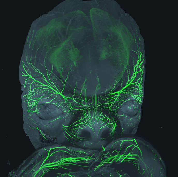 En vert, l'innervation sensitive de la face d'un embryon d'environ 8 semaines de développement.