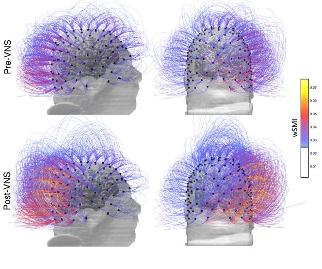 Cette image fournie par l'Institut des Sciences Cognitives du CNRS Marc Jeannerod à Lyon, France, montre l'activité cérébrale chez un patient avant, en haut et après stimulation du nerf vague. Les couleurs plus chaudes indiquent une augmentation de la connectivité. Dans un rapport publié le lundi 25 septembre 2017, les médecins français disent avoir rétabli certains signes de conscience chez un homme blessé au cerveau qui n'avait montré aucune prise de conscience depuis 15 ans. (CNRS Marc Jeannerod Institut des Sciences Cognitives, Lyon, France via AP)