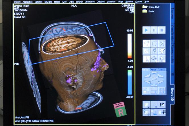 «Avec l'imagerie cérébrale, ce que l'on découvre aujourd'hui est la structure et le fonctionnement du cerveau qui apprend»