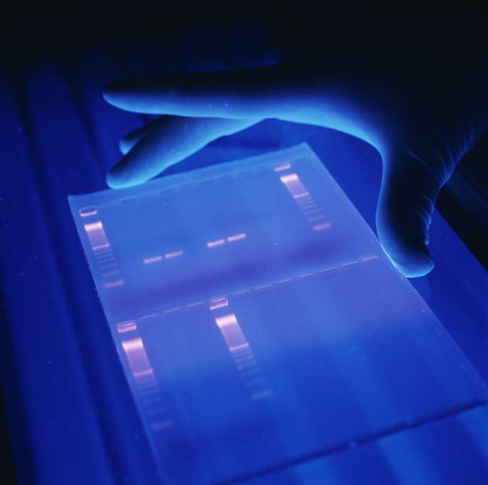 Les tests génétiques repérant certaines mutations n'expliquent pas la totalité des cancers du sein familiaux.