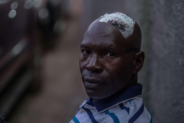 Un partisan du SLPP blessé après des heurts avec la police, le 7mars, à Freetown.