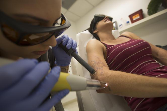 Une femme se fait retirer son tatouage à l'aide d'unlaser, dans une clinique de Beverly Hills, aux Etats-Unis, en mai 2016.