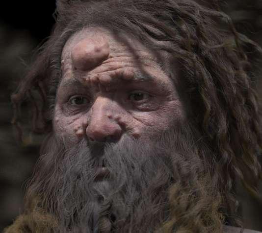 L'homme de Cro Magnon a un visage, couvert de nodules — Dordogne