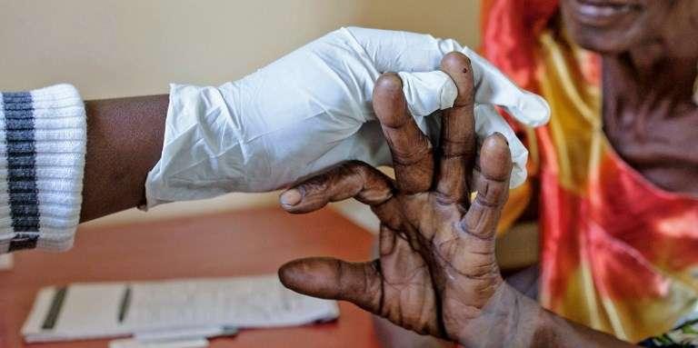 Test de dépistage du paludisme dans un centre de santé de Bududa, en Ouganda, en 2017.